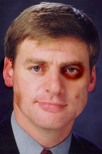 Billenglish-bruised